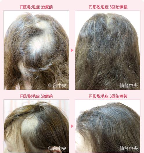 円形 脱毛 症 治療 円形脱毛症の世界一効果的な治し方|プロが3つの原因別に解説