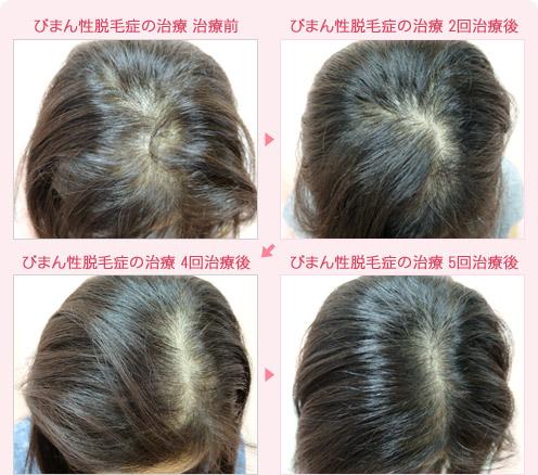 性 症 びまん 女性 原因 脱毛 10代や20代でもつむじハゲに悩む女性急増|原因と改善方法とは【写真あり】