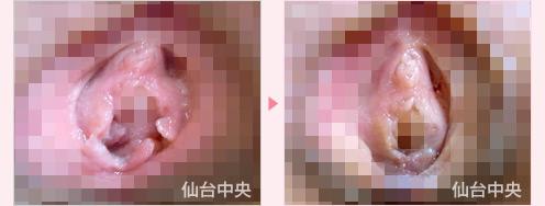 処女膜 画像 処女膜再生術 : 美容外科医のモノローグ