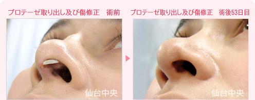 鼻 プロテーゼ 失敗