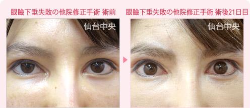 眼瞼下垂の失敗・再手術の名医探し/仙台中央クリニック