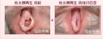 しょう いん しん 切除 症例 写真